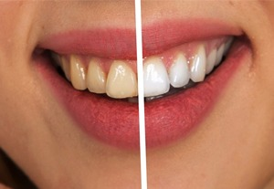 curso-enfermedades-periodontologicas