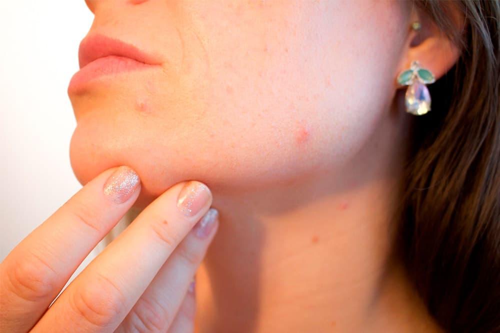 Dermofarmacia: tu aliada contra el acné