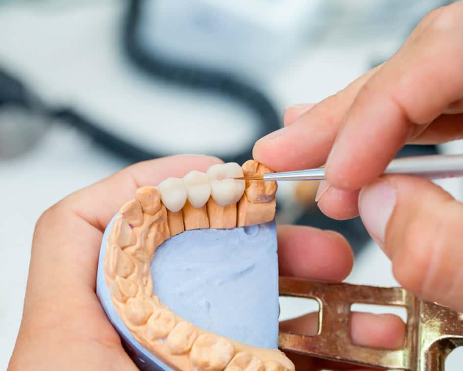 tecnico protesis dental a distancia